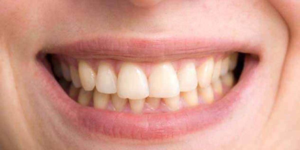 Pc Spots On Teeth During Pregnancy License Keygen Latest Download